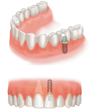 Dental Implants by Ainsdale Dental Practice